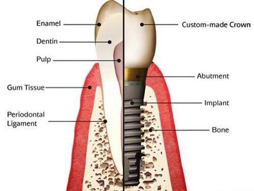 Aparatul dento maxilar (adm) - dr. aristide - dentist bun in Bucuresti